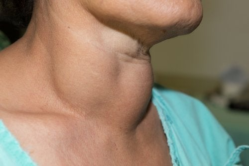 La cirugía como alternativa al tratamiento farmacológico del hipertiroidismo.