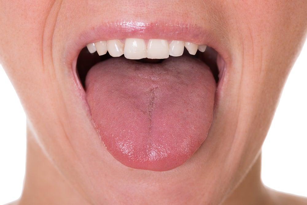 Los 5 primeros síntomas de cáncer de lengua