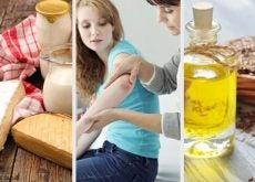 Podemos curar la psoriasis con remedios naturales