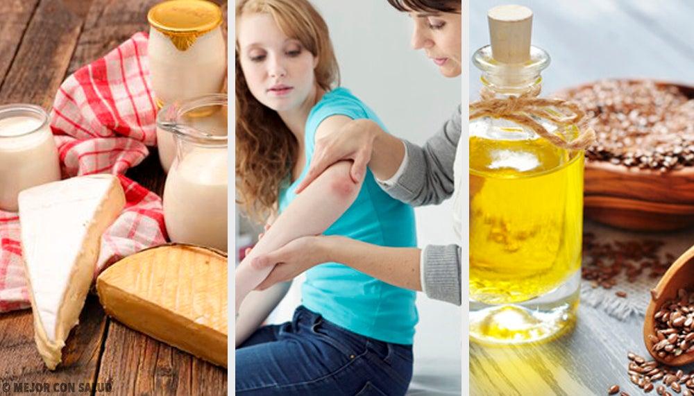 ¿Podemos curar la psoriasis con remedios naturales?