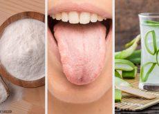 Podrás deshacerte de la lengua blanca con estos 8 remedios naturales