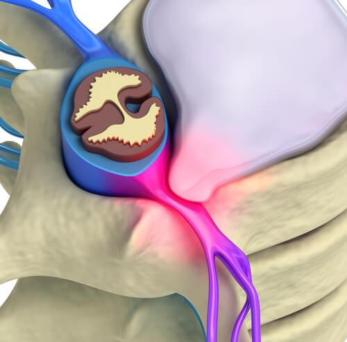 Qué estimulos activan a los nociceptores