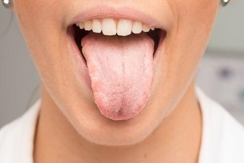 Qué puede provocar la lengua blanca