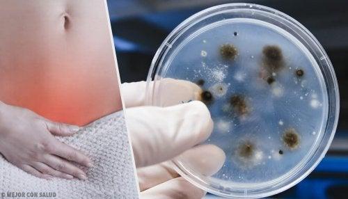 Diferentes tipos de infeccion