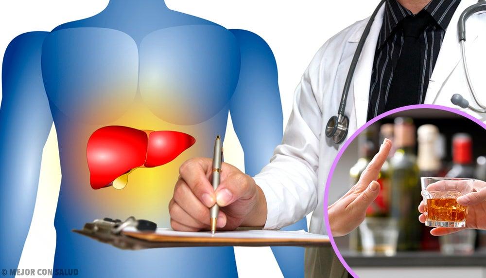 cirrosis como problema del hígado