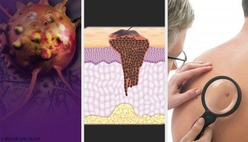 Tratamiento del cáncer de piel