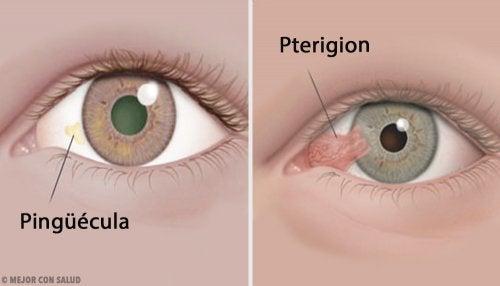 Tumores de córnea: pinguécula y pterigion