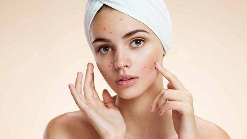 Chica-con-acne-por-hirtusismo