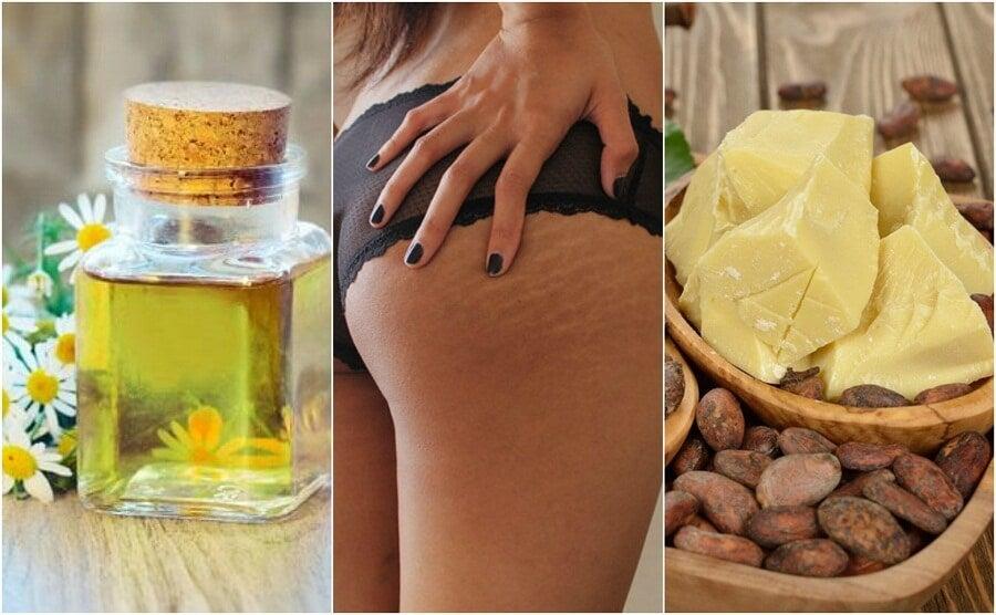 ¿Quieres atenuar las estrías de tu cuerpo? Apunta estos 5 remedios caseros