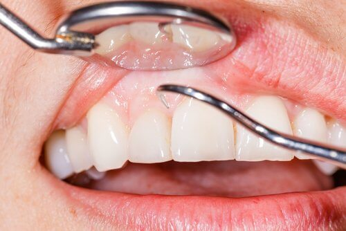 Dentista examinando encías sensibles