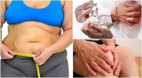 8 riesgos a los que te expones debido a la obesidad