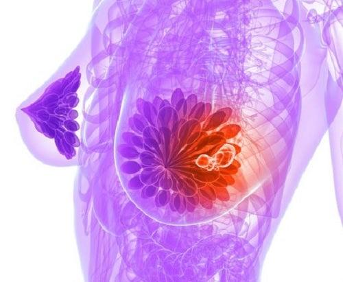 En las etapas intermedias y avanzadas, el cáncer se expande rápidamente