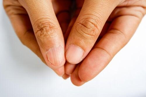por que salen rayas negras en las uñas