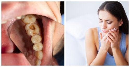 7 síntomas que te alertan de una infección dental