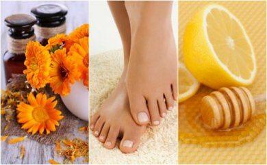 5 remedios naturales para tratar las uñas encarnadas