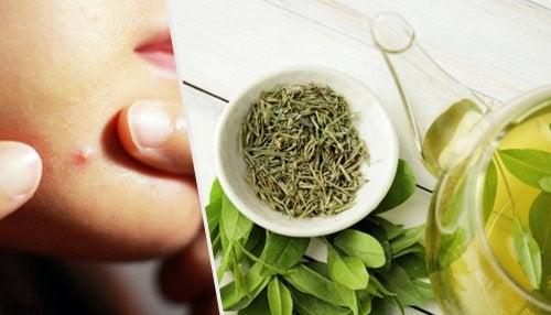 6 tónicos y mascarillas con té verde para combatir el acné