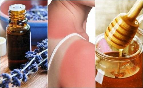 7 remedios de origen natural para tratar las quemaduras de primer grado