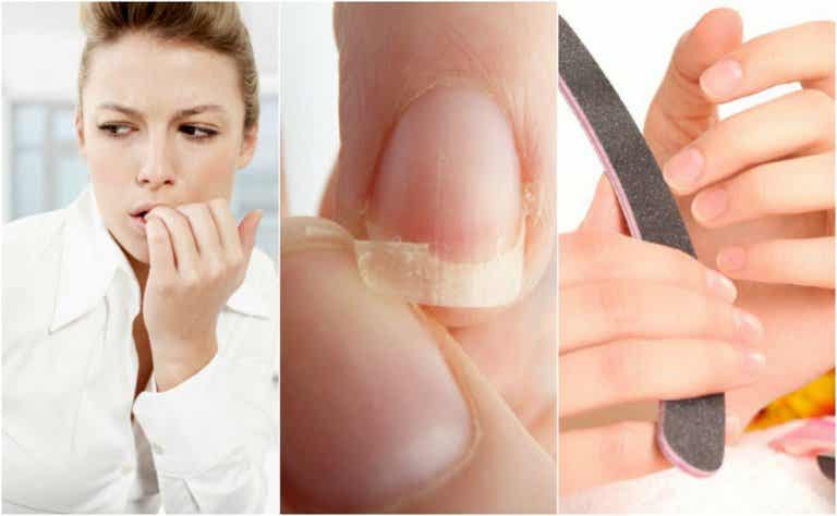 8 razones por las que tienes uñas quebradizas