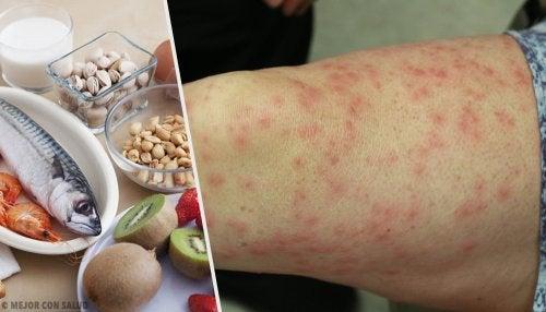 Cuáles son los alimentos alergénicos más comunes