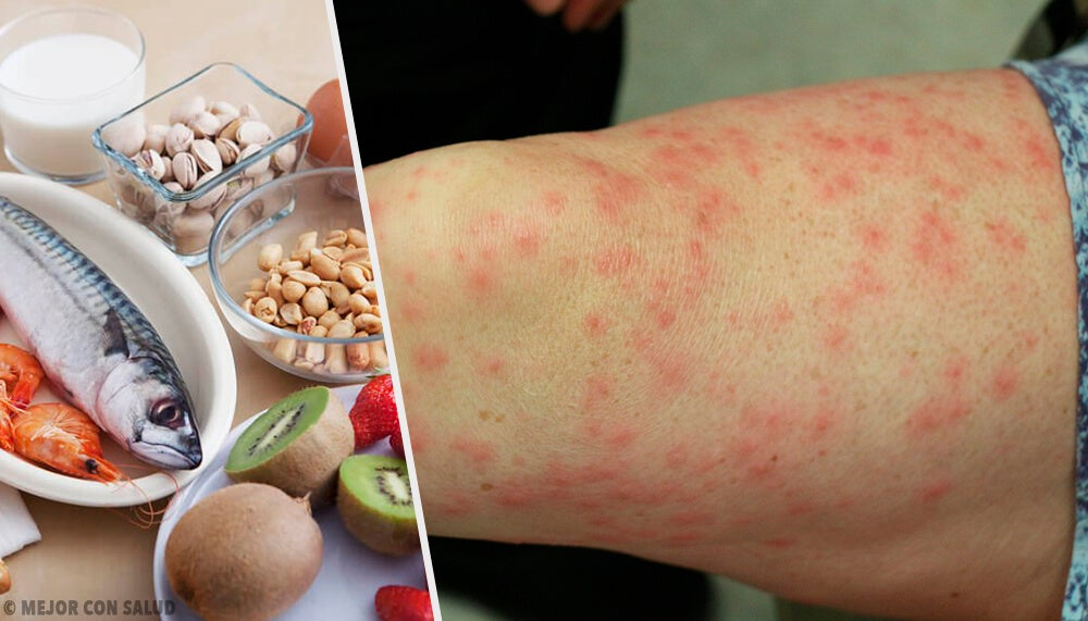Conoce los alimentos alergénicos más comunes y sus mejores sustitutos