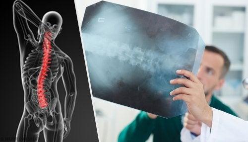 Angiodisgenesia espinal