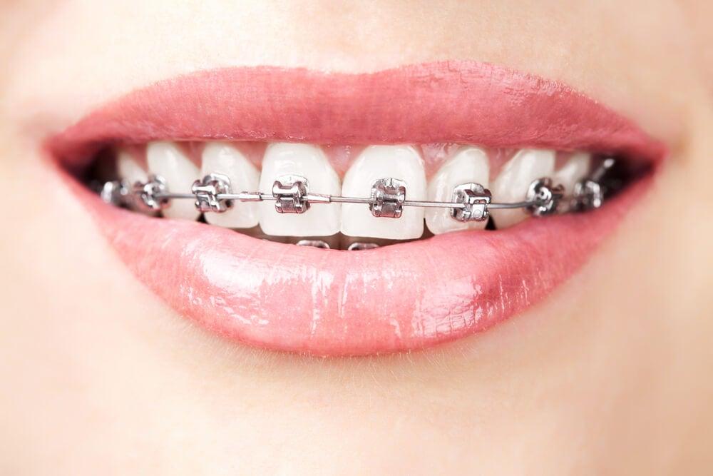 Brackets metálicos, un tratamiento dental muy eficaz
