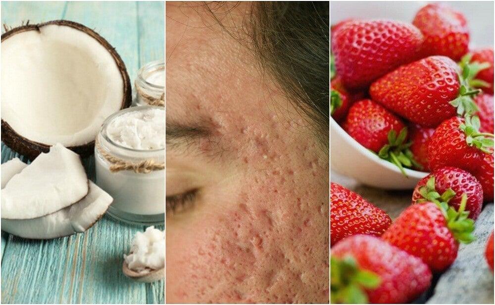 Cómo atenuar las cicatrices del acné con 5 tratamientos caseros