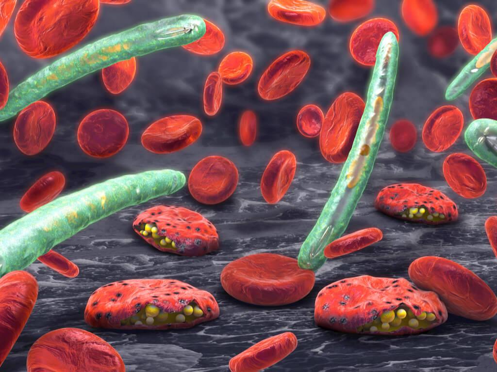 Características de la fiebre de aguas negras
