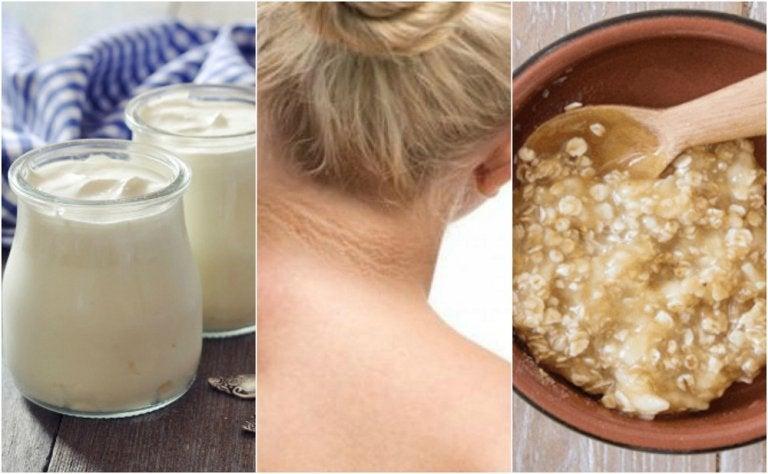 Combate las manchas en el cuello con 5 remedios