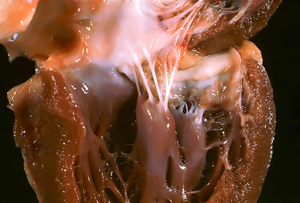 Contracción-muscular-sistole