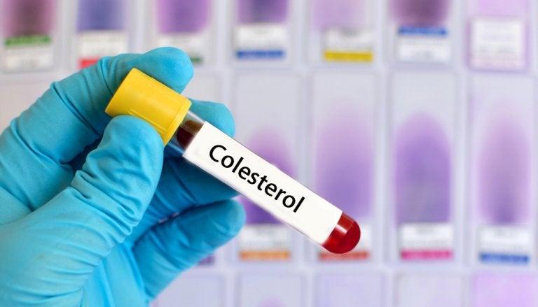 6 remedios de plantas que ayudan en el tratamiento del colesterol alto