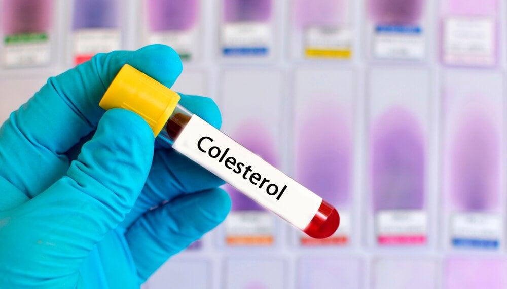 Resultado de imagen para baja colesterol te negro