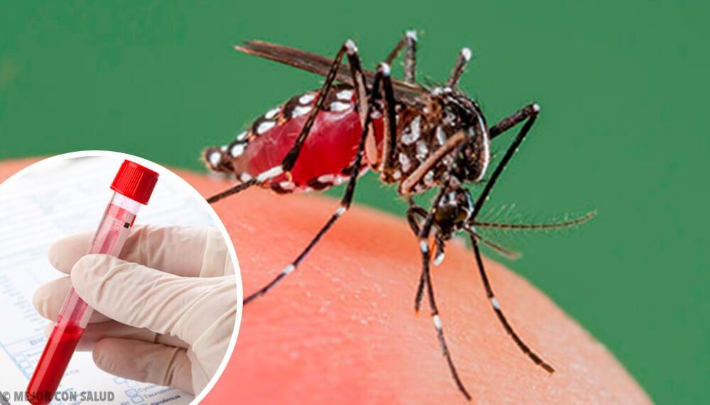 El dengue: síntomas, tratamiento y prevención