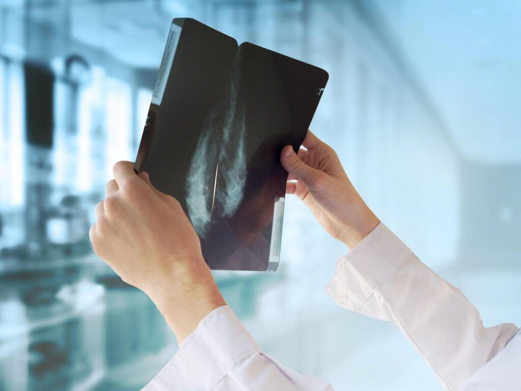 El diagnóstico del secuestro broncopulmonar se puede realizar mediante radiografía.