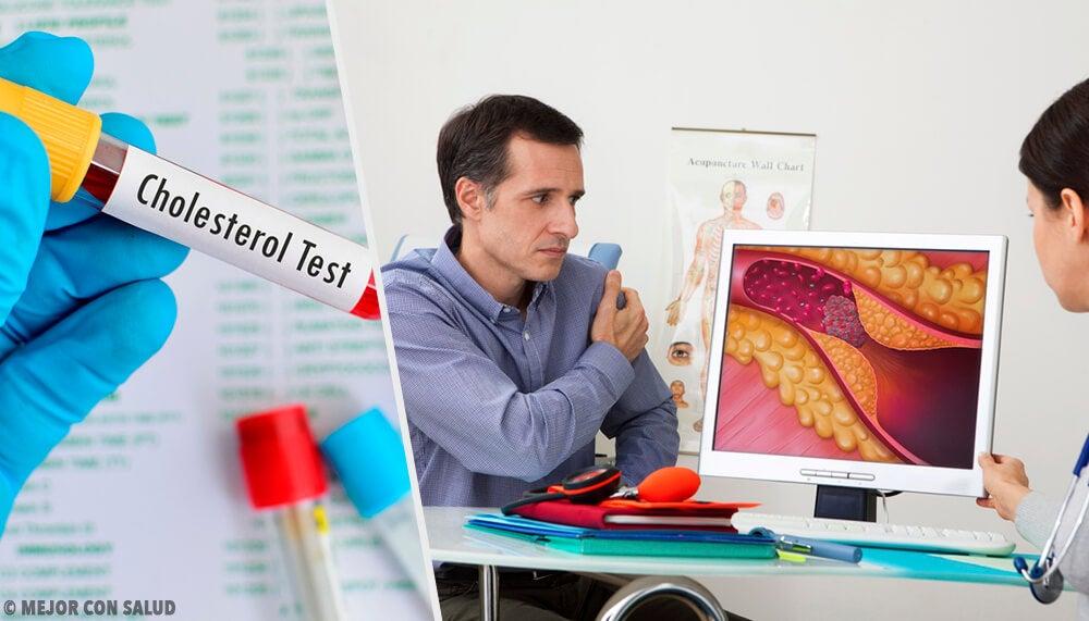 El nivel óptimo de colesterol, ¿cuándo hay que preocuparse?