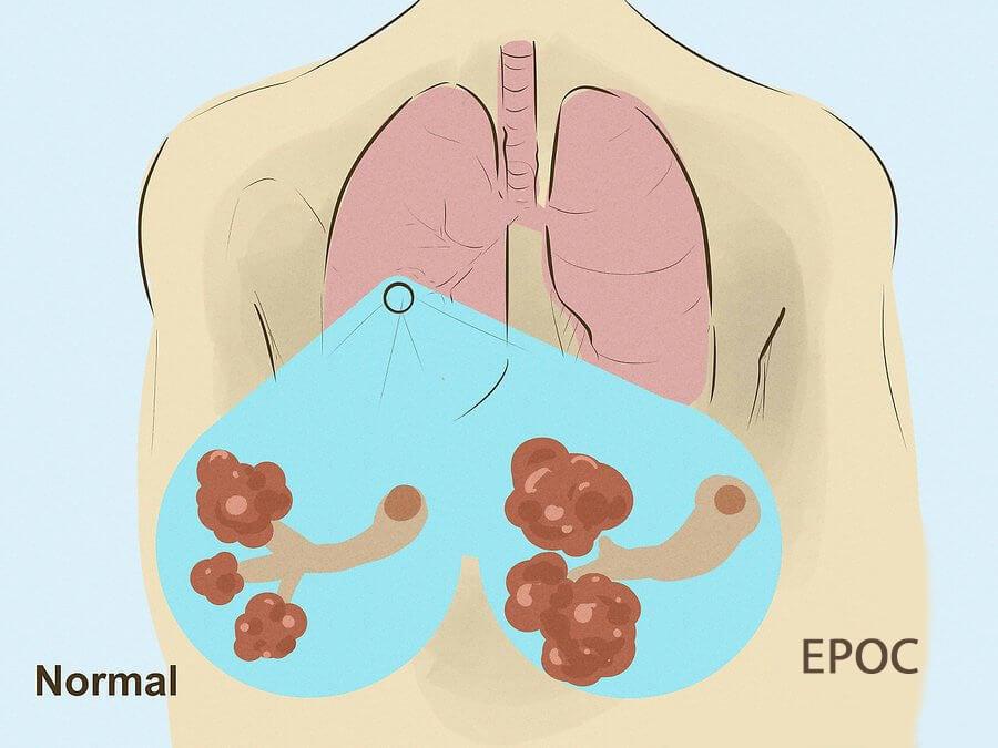 Enfisema pulmonar: causas y síntomas