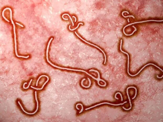 Formas clínicas de la acantoamebiasis