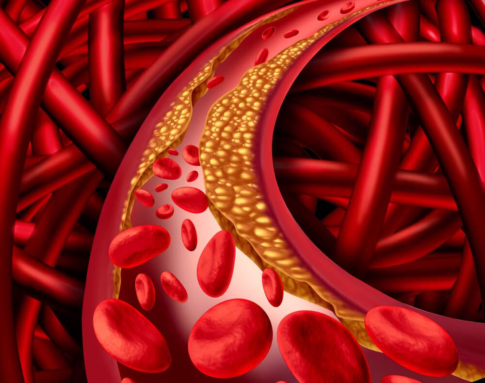 Mandarina-efectiva-contra-la-hipercolesterolemia