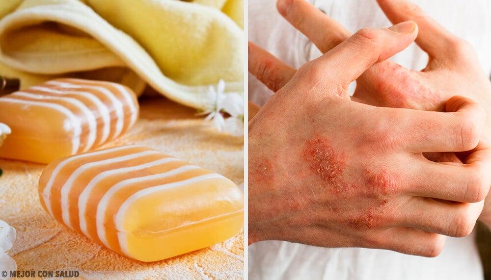 Jabón casero de glicerina, propóleo y arcilla para la dermatitis