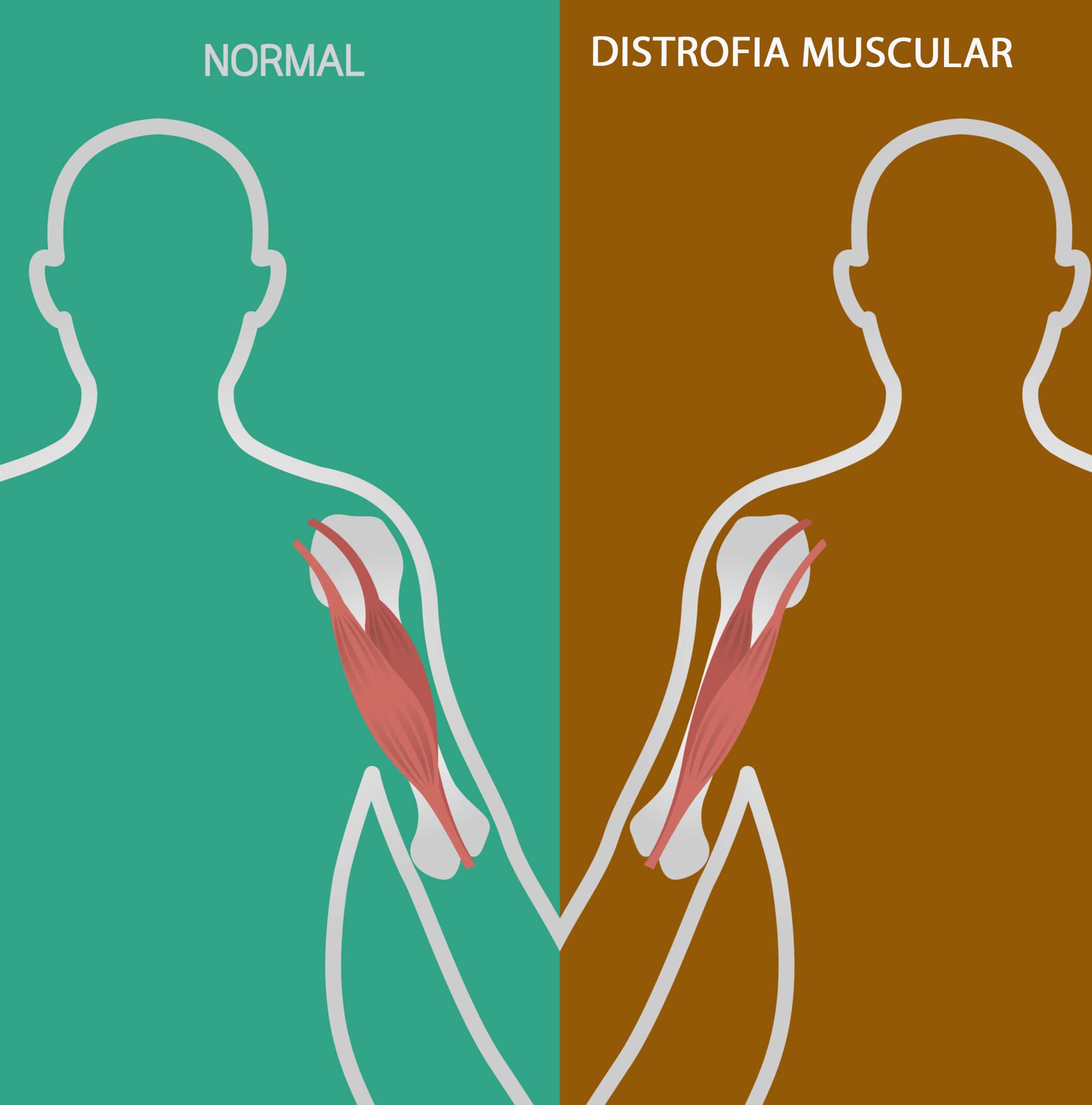 La distrofia muscular de Duchenne