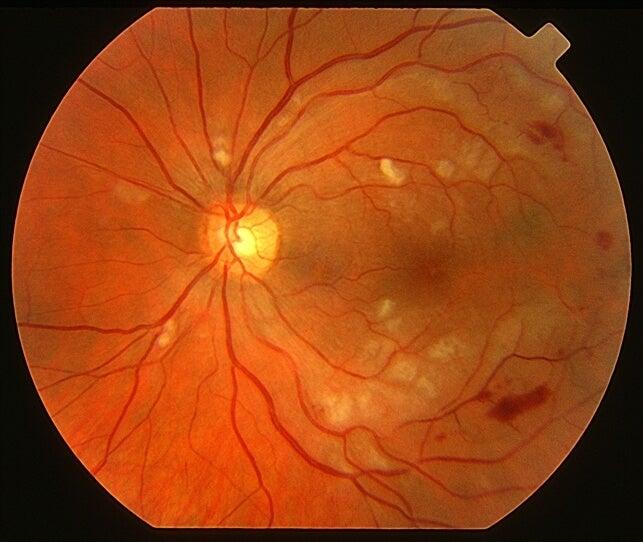 La luteína combate la degeneración macular