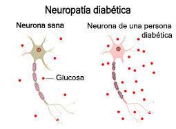 neuropatía diabética y Cymbalta
