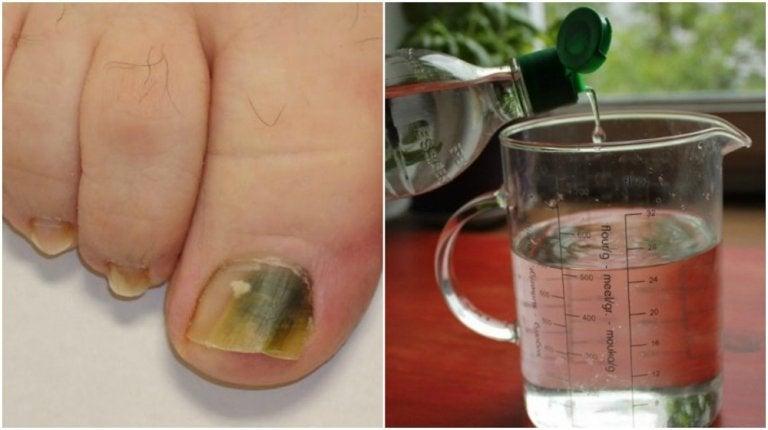 Receta a base de alcohol e ingredientes naturales para combatir los hongos en las uñas