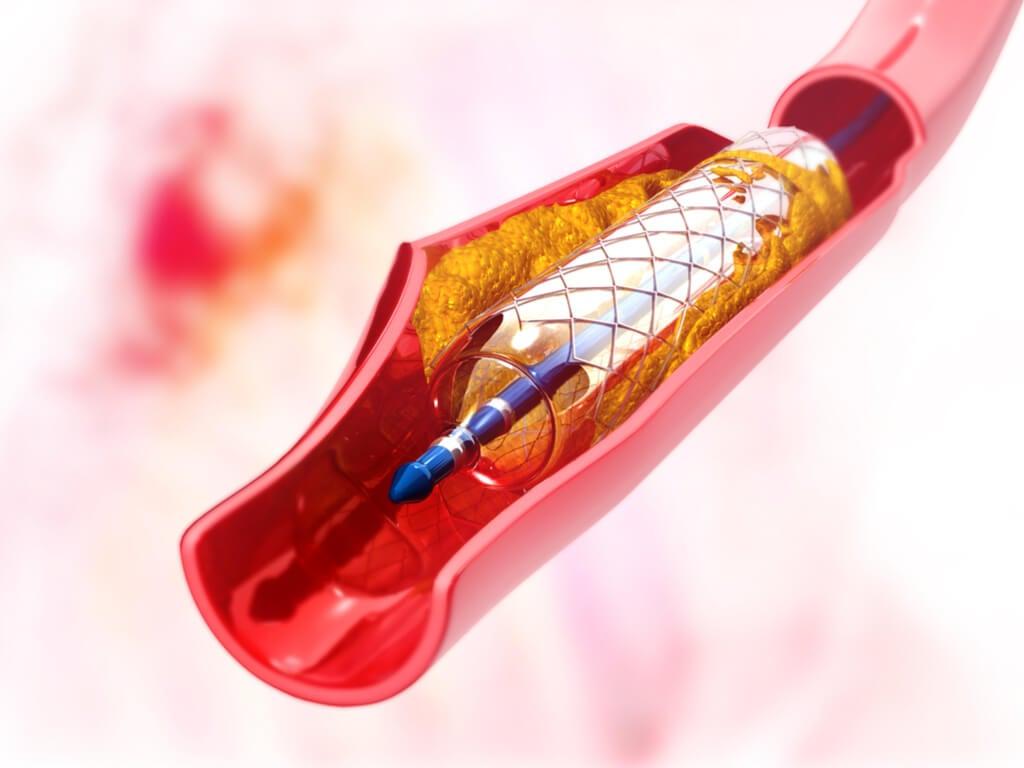 Recomendaciones previas-angioplastia coronaria
