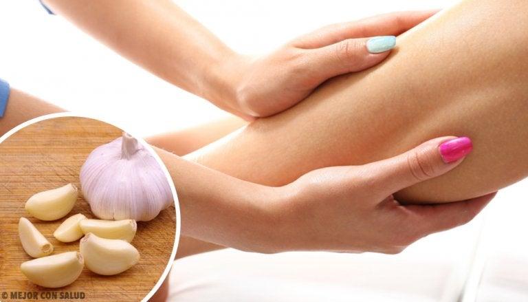 Remedios naturales para reducir edemas