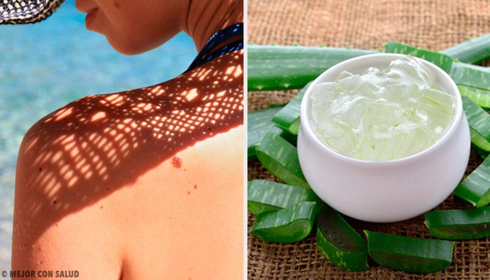 Remedios para combatir la piel enrojecida por el sol