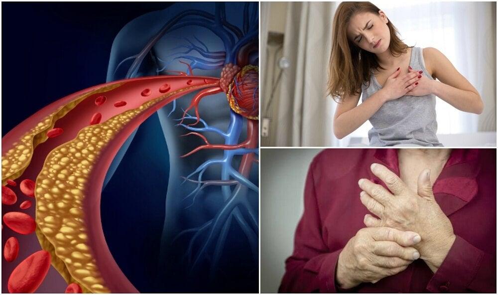 ¿Tienes el colesterol alto? Averígualo con estos 10 síntomas