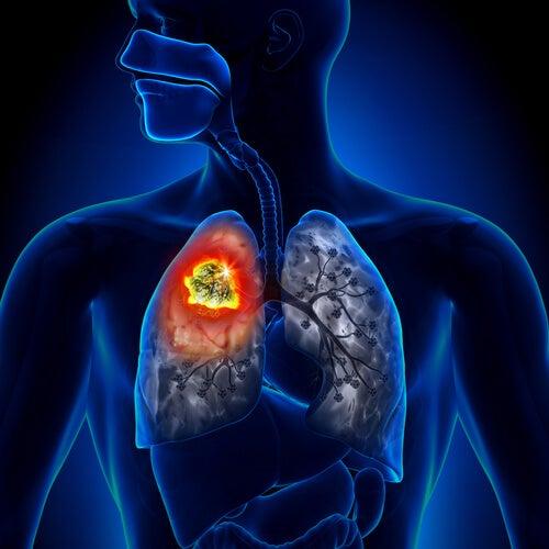 fumar produce cáncer de pulmón