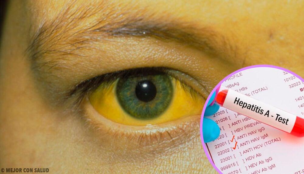Tratamiento de la hepatitis A