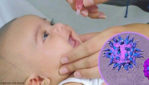 Tratamiento de la poliomielitis